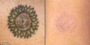 expert reveals the most commonly removed tattoos daily mail online
