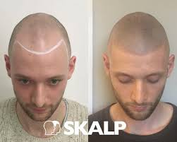 different types of receding hairlines 7 best smp images on pinterest barbershop bb and beleza