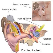 Anatomy And Physiology Ear Cochlear Implant Wikipedia