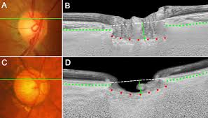 diagnostic power of lamina cribrosa depth and curvature in