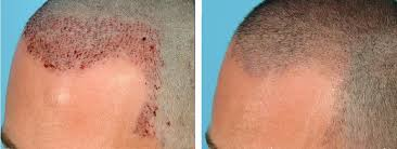 fut hong kong hair transplant how to clean and remove scab after hair transplant surgery hair