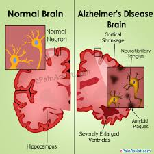 alzheimer s disease causes stages treatment prognosis