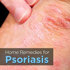 psoriasis treatment homeopathic psoriasis treatment right lifesyle