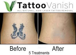 tattoo removal inc tattoo vanish the best all natural non laser tattoo removal