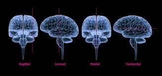 Which Part Of The Brain Consists Of Two Hemispheres Brain Anatomy White Matter Cerebellum Cerebral Cortex Medulla