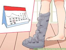 Comfortable Shoes After Foot Surgery How To Recover From Plantar Fasciitis Surgery 15 Steps