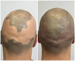 scalp micropigmentation hair tattoo for hair loss scalp aesthetics