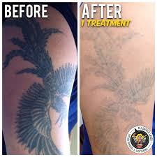 laser tattoo removal melbourne reviews laser tattoo removal