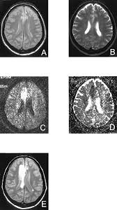 diffusion weighted magnetic resonance imaging in acute stroke stroke