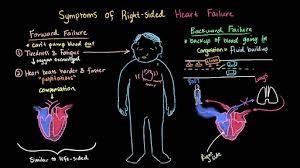 circulatory system diseases health and medicine science khan