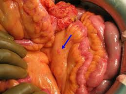 Pictures Of Abdomen Organs Hipec Ovhipec Pmp Peritoneal Cancer Peritoneum Seeding Seedings