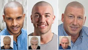 pics of scalp micropigmentation on people with long hair scalp micropigmentation hair tattoo for hair loss uk and new york