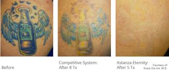 astanza tattoo removal before u0026 after photos tattoo removal results