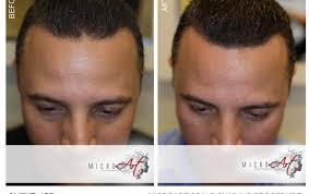scalp tattoo hair loss all the best hair in 2018