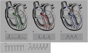 alterações eletrocardiográficas benignas e patológicas em atletas