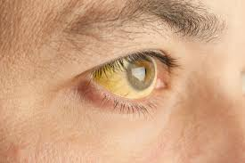 How Is Color Blindness Caused Yellow Fever Symptoms Causes And Prevention