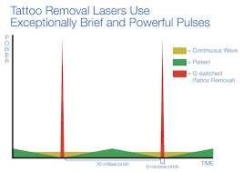 q switched tattoo removal lasers lasers at new look laser college