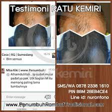 membuat minyak kemiri untuk rambut botak testimoni ratu kemiri penumbuh kebotakan rambut parah