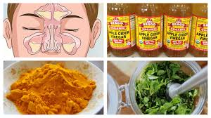 best natural home remedies for sinusitis youtube
