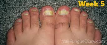 nail fungus update february 2015 nail fungus diary