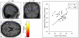 frontiers structural correlates of reading the mind in the eyes