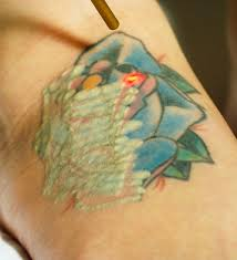 laser tattoo removal in windham new hampshire astanza laser