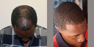 hairline restoration for black men best african american hair transplant surgeons in fort lauderdale
