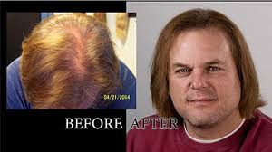 low level light therapy hair laser hair therapy treatment hair growth fort worth tx