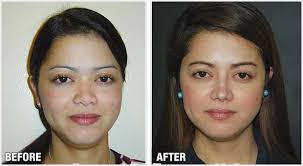 filipino before u0026 after rhinoplasty cosmetic surgery by dr raynald