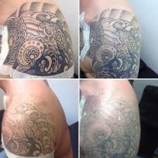 tattoo removal shoulder shoulder tattoo st james tattoo removal