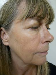 best hairstyles for sagging jowls video non surgical jowl lift in los angeles by dr umar