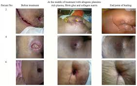pilonidal cyst treatment of life u2011threatening wounds with a combination of