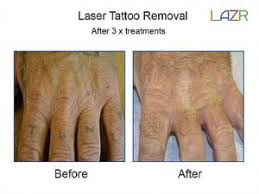 tattoo removal warrington cheshire laser tattoo removal warrington