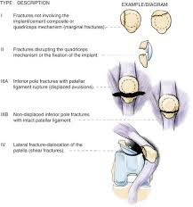 Lateral Patellar Ligament Fractures Of The Patella Musculoskeletal Key