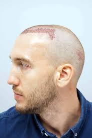 hair plugs for men behind the scenes of a 7 500 hair transplant mirror football