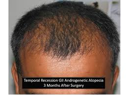 hair transplant month by month pictures hair growth after hair transplant hairtransplant pune