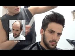 chinese middle age man hair style hair replacement fitting video sam hair loss baldness hair