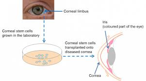 Can Stroke Cause Blindness The Eye And Stem Cells The Path To Treating Blindness Eurostemcell