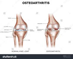 Knee Bony Anatomy Knee Osteoarthritis Normal Joint Detailed Anatomy Stock Vector