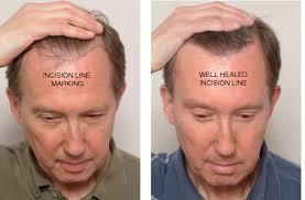 hair plugs for men electrolysis hair transplant repair hair transplant mentor