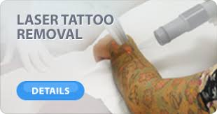 laser tattoo removal faq brisbane