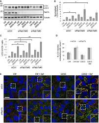 Rab7b modulates autophagic flux by interacting with Atg4B
