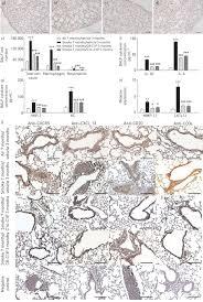 ceramide 1 phosphate inhibits cigarette smoke induced airway