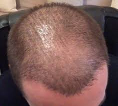 hair transplant month by month pictures emmanuel hair transplant ot 4500 hairs with fue method