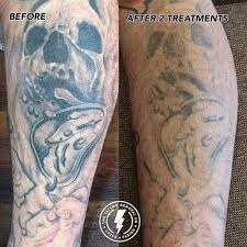 laser tattoo removal adelaide body ink removal 100 safe