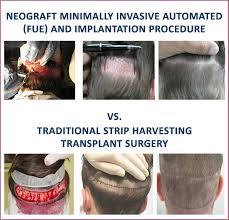 neograft recovery timeline neograft elite hair institute
