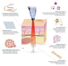 How Does Light Therapy Work Cold Laser Therapy