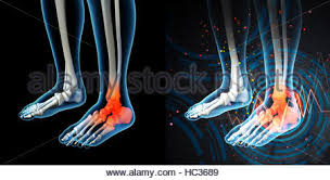 Anatomy Of A Foot X Ray Of A Foot And Ankle In A Running Shoe Stock Photo Royalty
