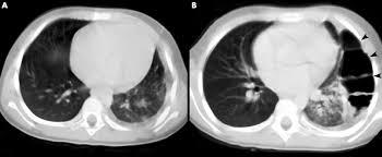bochdalek diaphragmatic hernia not only a neonatal disease