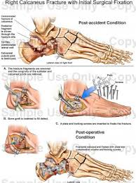Calcaneus Anatomy Right Calcaneus Fracture With Initial Surgical Fixation Medical